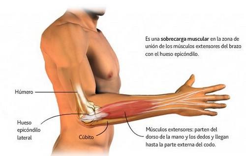 epicondiditis-lateral